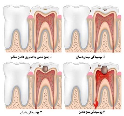 جداسازی پوسیدگی دندان