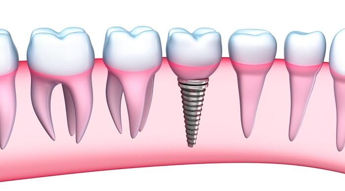 فیسینگ دندان