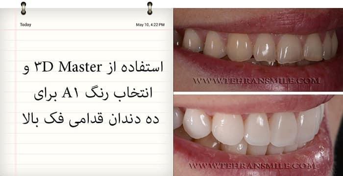ونیرها برای رفع بسیاری از مشکلات دندان استفاده می شوند