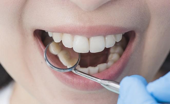 دندانپزشک ترمیمی مطب