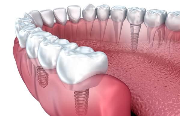انواع مختلف ایمپلنتهای دندانی