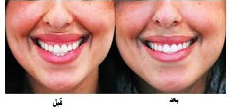 بوتاکس برای اصلاح لبخند لثهای