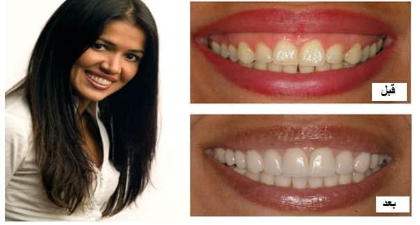 تغییر محل لب با کمک جراحی برای اصلاح لبخند لثهای