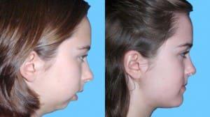 جراحی فک یا ارتوگناتیک برای اصلاح لبخند لثهای