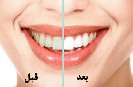 دستورالعملهای لازم برای پس از سفید کردن دندانها