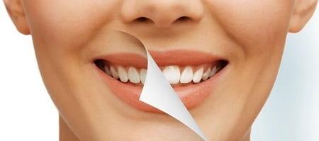 روند زرد شدن دندانها