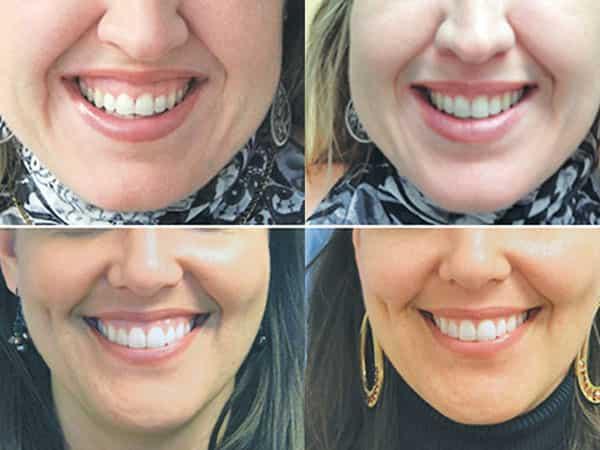 لبخند لثهای چیست؟