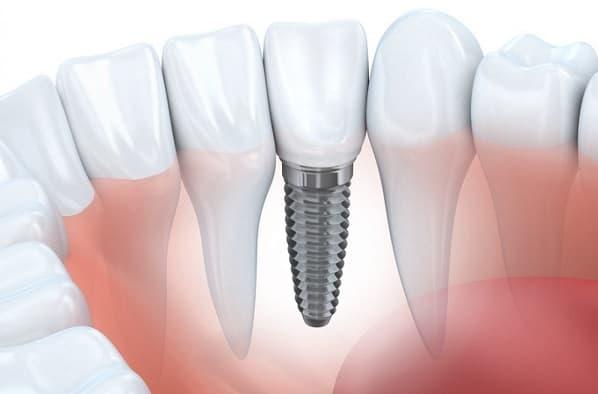 مزایا ایمپلنت و کاشت دندان طبیعی